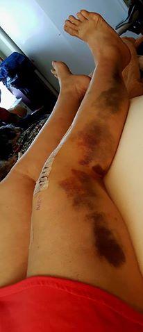 Lots of Bruising