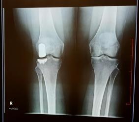 x-ray-aug-15
